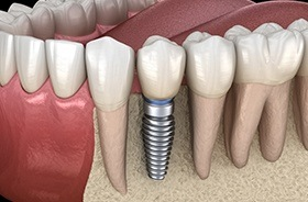 Diagram of single tooth dental implant in Branford