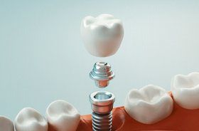Closeup of restoration for single tooth dental implant in Branford