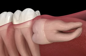 Image of a wisdom tooth below the gum line
