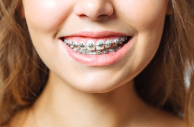 close-up of young woman's smile with braces in Branford