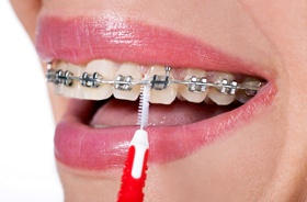 happy young man with braces giving double thumbs up