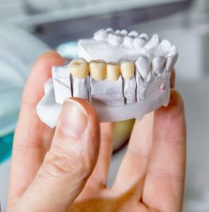 Hand holding tooth model with porcelain dental bridge in Branford