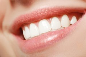 Close-up of woman's beautiful smile after cosmetic dental treatments in Branford