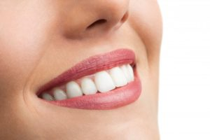 Beautiful smile after visiting cosmetic dentist in Branford